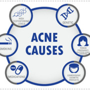 INFOGRAPHIC Acne Skin Condition