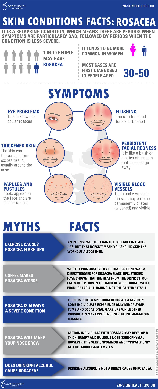 Rosacea Infographic