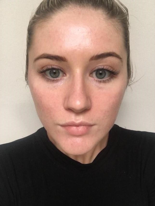 acne case study
