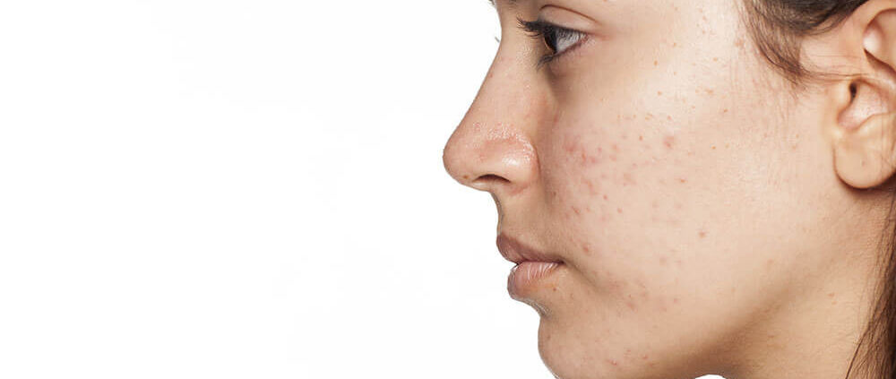 adult acne acne prevention