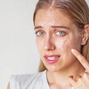 acne breakouts, blemish, lifestyle, habits