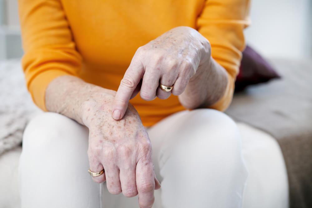 hand care, age spots, old hands
