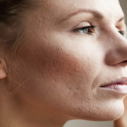 winter rosacea flare-ups, irritated skin