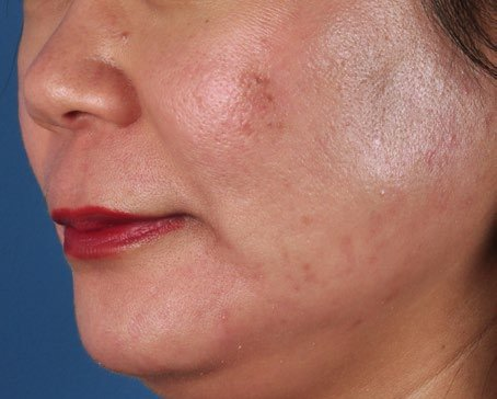 After-ZO-Severe-Acne-System