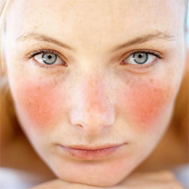 rosacea signs and symptoms