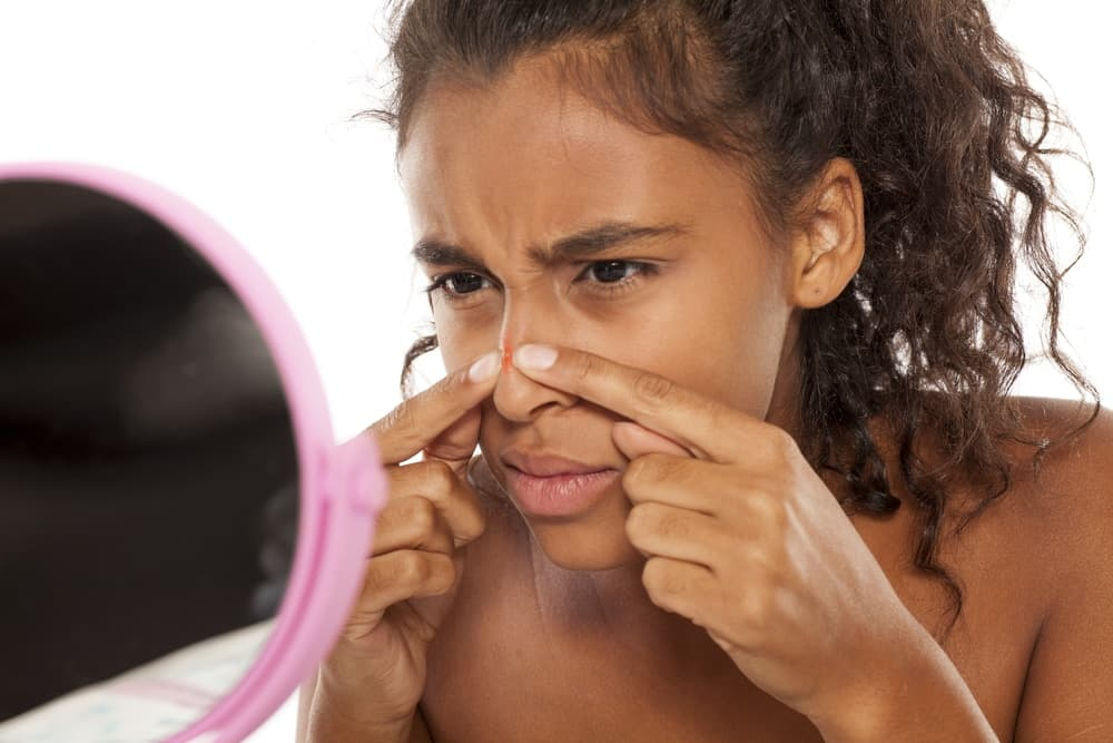 pores, squeezing blackheads, sebaceous filament, myths about your pores