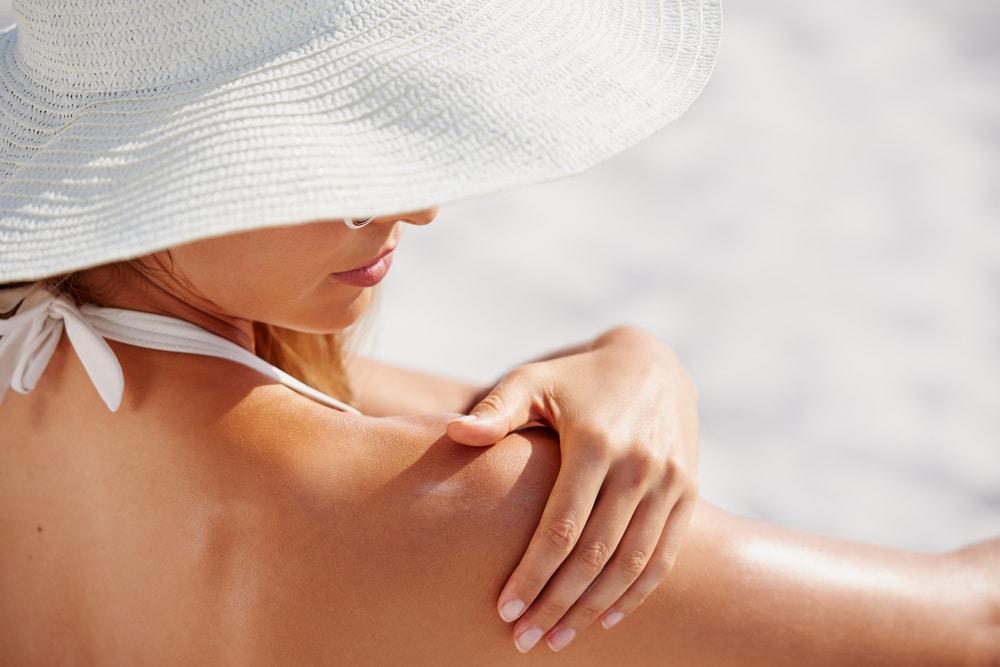 SPF, sun protection, melasma, melasma causes