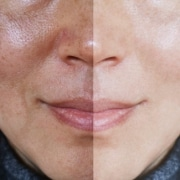 hyperpigmentation causes