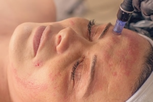 microneedling, post-procedure skin protection